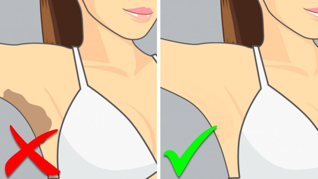 How to Whiten Dark Underarms Fast at Home